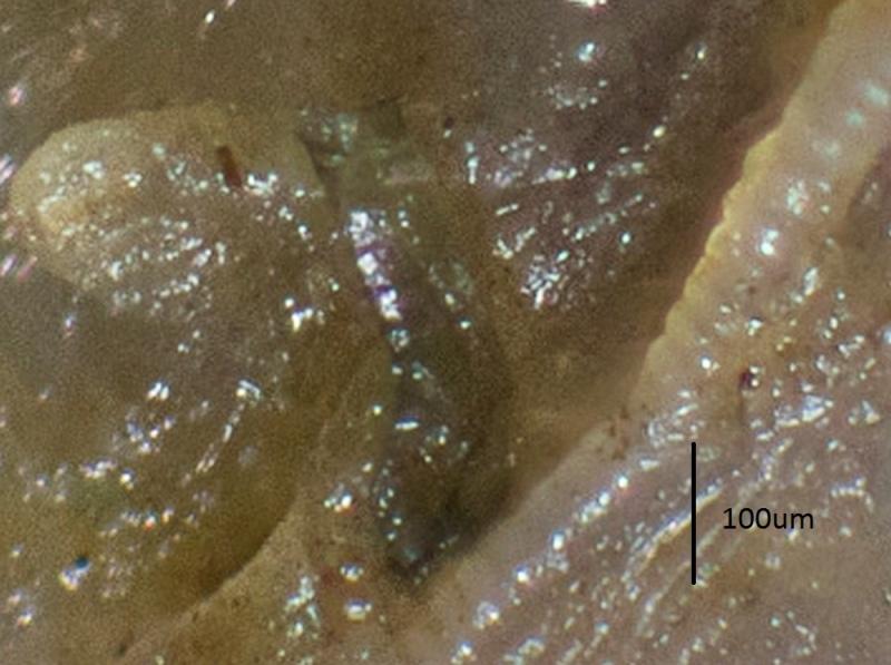 Folliculinidae